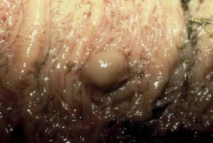 Strongyle larva encysted in horse intestinal wall.